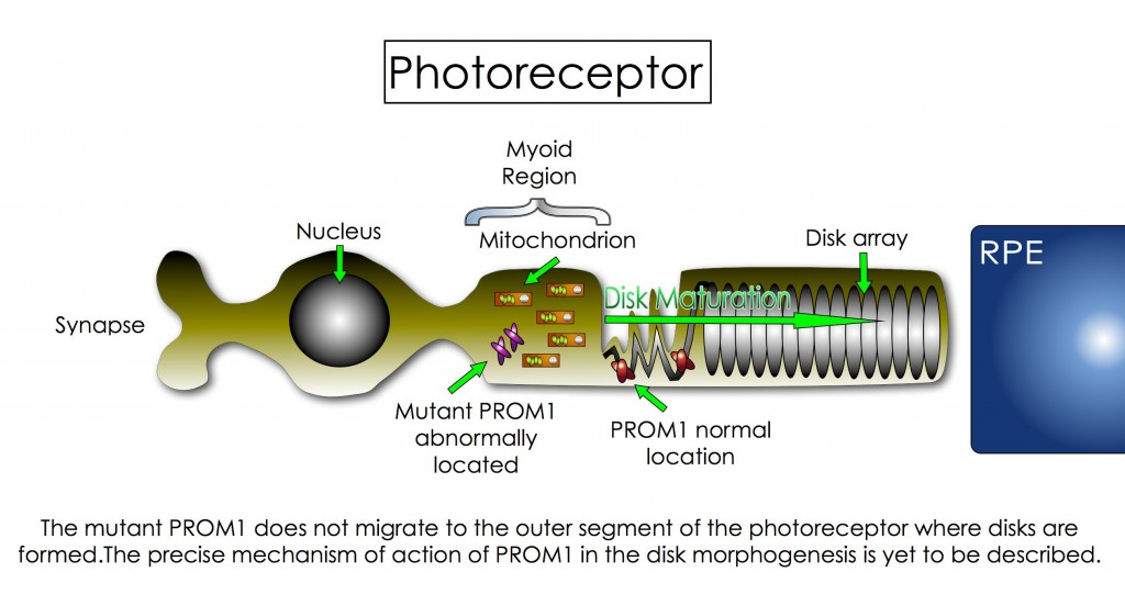 The mutant PROM1 does not migrate to the outer segment of the photoreceptor where disks are formed. The precise mechanism of action of PROM1 in the disk morphogenesis is yet to be described.